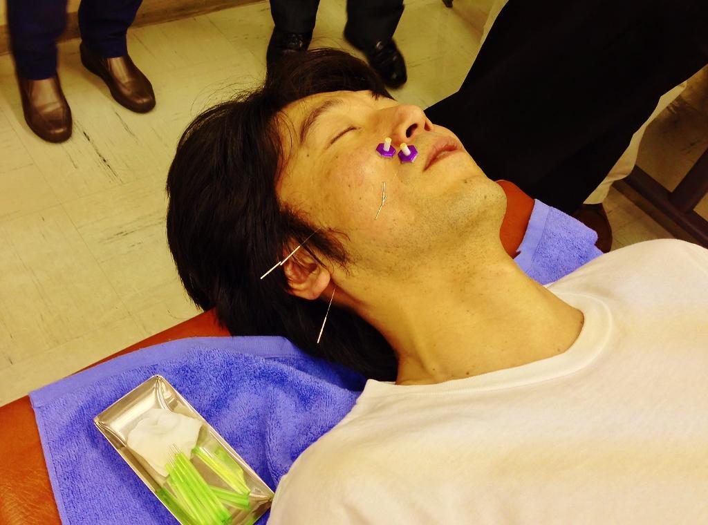 6月26日実施 臨床のコツ『Bell麻痺とHunt症候群』小池 英義