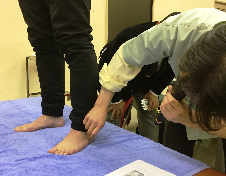 『急性腰痛の鍼灸治療(即効ツボ刺激)』 永島 茂雄(千葉県鍼灸師会)